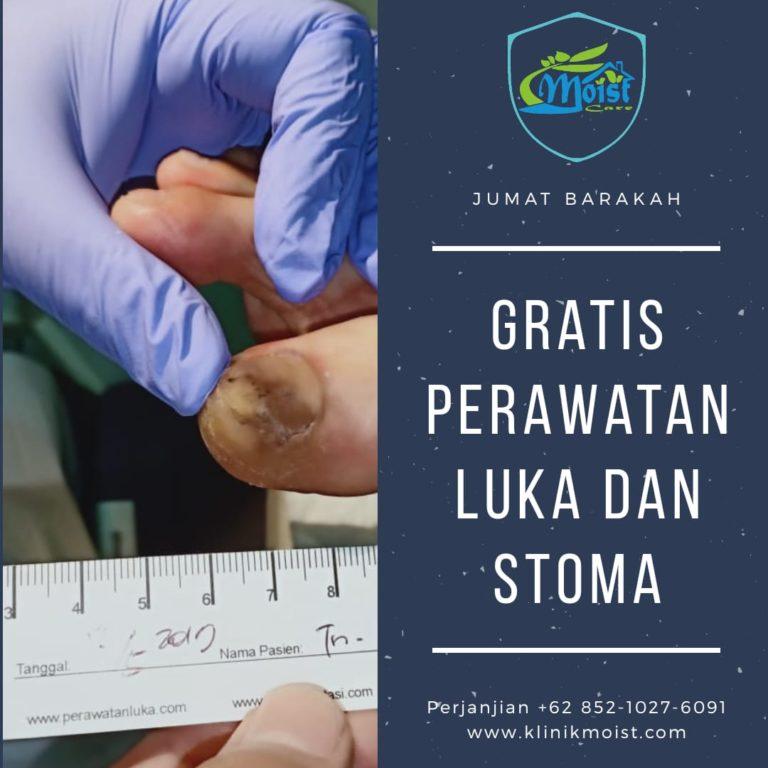 Mosit Care Perawatan Luka Stoma