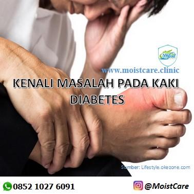 pengobatan kaki diabetes, penyembuhan luka bakar