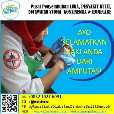 Pengobatan luka diabetes, Perawatan luka
