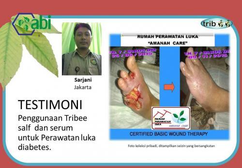 Salep Luka Diabetes Tribeesalf 10