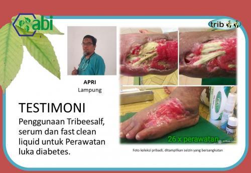 Salep Luka Diabetes Tribeesalf 7